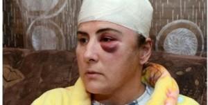 Montenegro, cronista picchiata. L'ultimo episodio di una lunga serie