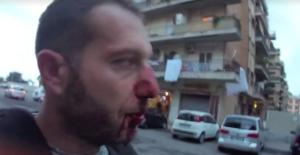 Ostia, aggredita troupe Rai da esponente famiglia Spada. Naso rotto per il giornalista Piervincenzi. Solidarietà e condanna di Fnsi e Usigrai
