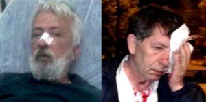 Turchia, due giornalisti picchiati in 5 giorni, Articolo 21 e altre 20 ong a Erdogan: condanni apertamente aggressioni