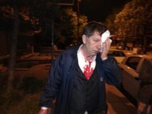 Turchia, editorialista e scrittore turco aggredito sotto casa mentre altri tre giornalisti finiscono in carcere