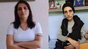 Turchia, si è spenta a 28 anni Helin Bolek. Digiunava per protesta contro prigionia dissidenti curdi da 288 giorni