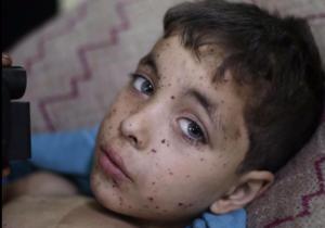 La storia di Nour e i bambini siriani vittime del conflitto